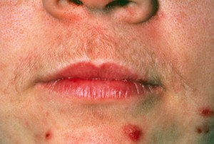 PRinc_rm_photo_of_hirsutism