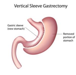 Gastric Sleeve By Dr. Kuri