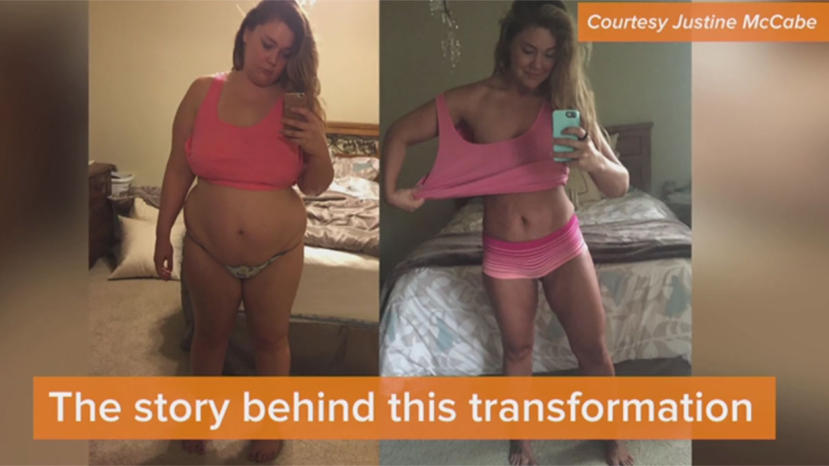 Woman loses 124 lbs with the Gastric Sleeve, taking a selfie a day