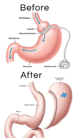 Gastric Sleeve Surgery In Mexico With Dr Kuri